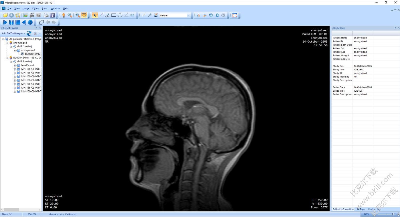 DICOM图像浏览软件(MicroDicom DICOM viewer)
