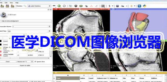 医学DICOM图像浏览器大全
